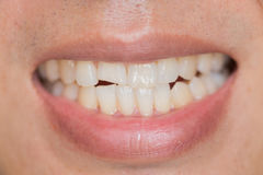 Closeup mouth dental problem. Teeth Injuries or Teeth Breaking in Male. royalty free stock image