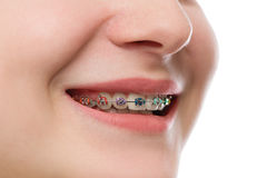 Closeup multicolored Braces on Teeth. Beautiful Female Smile por Stock Images