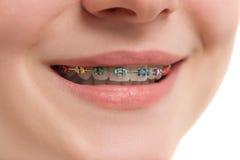 Closeup multicolored Braces on Teeth. Beautiful Female Smile wit Stock Photography