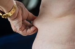 Closeup of obese elderly caucasian overweight woman Royalty Free Stock Image
