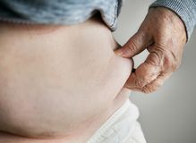 Closeup of obese elderly woman Stock Photography