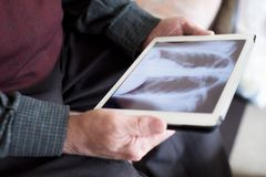Old man observing a chest radiograph in a tablet. Closeup of an old caucasian man observing a chest radiograph in a tablet, sitting in a couch stock photo