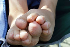 Closeup of a pair of bare feet and shrivelled up toes Royalty Free Stock Image