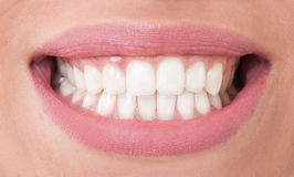Closeup with perfect female teeth Royalty Free Stock Photography