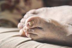 Closeup of a person`s feet with arthritis, damaged nails. Closeup of a senior person`s feet with arthritis, damaged nails and athlete`s feet royalty free stock photos