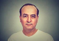 Closeup portrait headshot balding man royalty free stock images