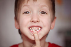 Closeup portrait Little happy boy proud to loose his milk tooth Stock Images