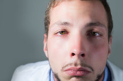 Closeup portrait of sad young doctor crying Stock Image