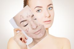 Portrait of woman with clean skin holding portrait with pimpled. Closeup portrait of woman with clean skin holding portrait with pimpled skin royalty free stock photo