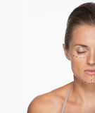 Closeup portrait of woman with plastic surgery marks on face Royalty Free Stock Photo