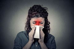 Closeup portrait woman sneezing in a tissue blowing her runny no Stock Image