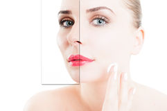 Closeup portrait of woman using cream for correction of wrinkles Royalty Free Stock Photos