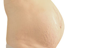Closeup of a pregnant belly with stretch marks. Royalty Free Stock Image