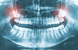 Closeup of x-ray image growing wisdom teeth pain concept. royalty free illustration