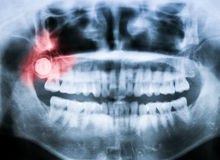 Closeup x-ray of impacted wisdom tooth. Closeup x-ray image of impacted wisdom tooth with pain abstraction in red color royalty free stock image