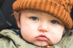 Sad boy with scar. Closeup of a sad young boy with a small scar on his left cheek Royalty Free Stock Images