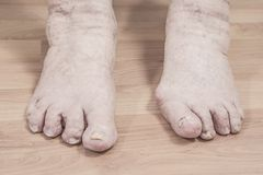 Closeup of a senior person`s feet with arthritis, damaged nails. And athlete`s feet royalty free stock image