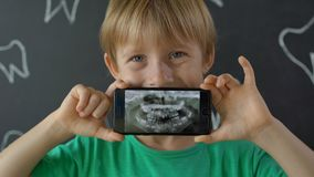 Closeup shot of a little boy with missing milk teeth showing his x-ray dental picture. Concept of children tooth change