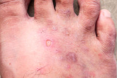 Closeup skin athlete's foot psoriasis fungus, hong kong foot, Stock Photo