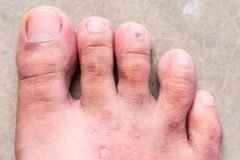 Closeup skin athlete's foot psoriasis fungus, hong kong foot, Royalty Free Stock Images