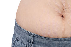 Closeup stretchmarks on woman belly Stock Image