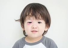 Closeup swollen eye of kid from insect bite with red bruise but he can smile. On white cement background Royalty Free Stock Image