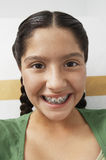 Closeup Of Teenage Girl With Braces Stock Image