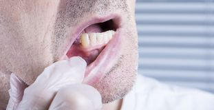 Closeup teeth, dental health care clinic with missing tooth royalty free stock photos