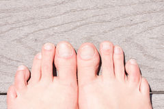 Closeup of ugly woman's feet Stock Photography