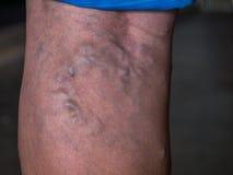 Closeup of the varicose veins on a leg Stock Image