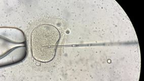View through microscope at in vitro fertilization process. Closeup view through the microscope at process of the in vitro fertilization of a female egg inside stock video