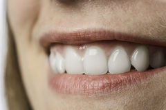 Closeup white teeth of young woman Royalty Free Stock Images