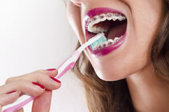 Closeup woman brushing teeth with braces Royalty Free Stock Photography