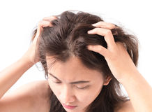 Closeup woman hand itchy scalp, Hair care Stock Images