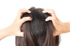 Closeup woman hand itchy scalp, Hair care Stock Photos