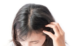 Closeup woman hand itchy scalp, Hair care. Concept royalty free stock photo