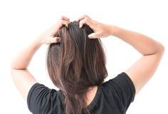 Closeup woman hand itchy scalp, Hair care. Concept royalty free stock photos