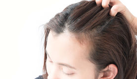 Closeup woman hand itchy scalp, Hair care concept Royalty Free Stock Photography