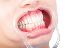 Closeup of woman mouth with plastic retractor Royalty Free Stock Photography