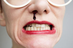 Closeup of woman with nosebleed Royalty Free Stock Photography