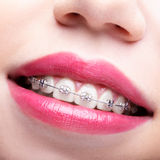 Closeup of woman open smiling mouth with brackets. Closeup of woman open smiling mouth with pink lips and brackets stock photo