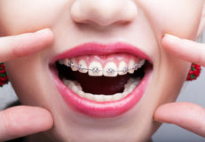 Closeup of woman open smiling mouth with brackets. Closeup of woman open smiling mouth with pink lips and brackets stock images