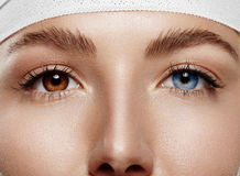 Closeup woman`s eyes with Heterochromia iridum. Pretty woman`s eyes have a different color Royalty Free Stock Photo