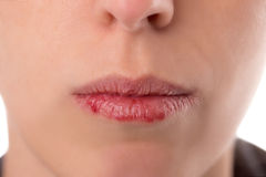 Closeup woman´s face with brittle and dry lips, concept lip sal