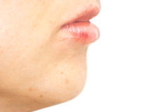Closeup of woman swelling lips after beauty treatment, side view Stock Photos
