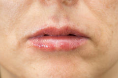 Closeup of woman swelling lips after treatment Royalty Free Stock Images