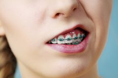 Closeup of woman teeth with braces, funny face. Dentist and orthodontist concept. Closeup of woman showing teeth with blue braces, making funny silly face Royalty Free Stock Images