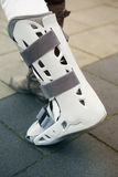 Closeup of woman walking with cast on foot Royalty Free Stock Photo