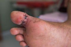 Closeup Wound stitched at thumb foot. Background. Closeup Wound stitched at thumb foot Stock Image