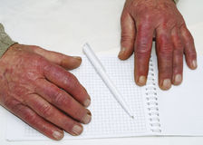 Closeup of the wrinkled hands of an old caucasian man holding pen and paper Stock Photos